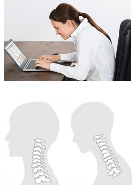 首痛・肩こりイメージ画像